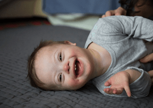 Embracing Down Syndrome Globally